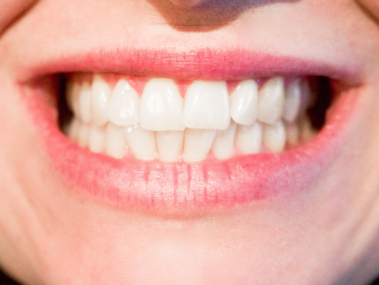 How To Whiten Teeth Without Baking Soda Fluoridefree